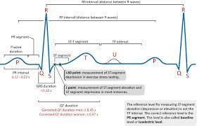 ECG interpretation: Characteristics of the normal ECG (P-wave, QRS complex,  ST segment, T-wave) – ECG & ECHO