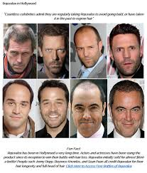 rejuvalex hair growth. Brilliant Rejuvalex This Ad Arrived As Spam With The Subject Line U201cMiracle Hair Growth  Formulau201d And Claiming Thereu0027s A New Hair Growth Drug Thatu0027s U201csweeping Nationu201d To Rejuvalex D