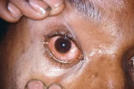 Image result for conjunctivitis blacks