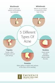 Pimples On Body Chart Types Of Acne The Differences Between Your Bumps And