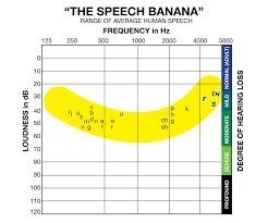 Normal Hearing Range Age Chart Speech Banana Wikipedia