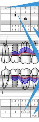 Periodontal Charting Online Free Periodontal Chart Department Of Periodontology School Of