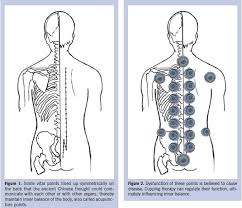 Hijama Cupping Points Chart 35 Cupping Points Chart Oberteil35 Cupping Points Chart