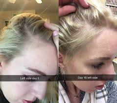 22 hair before and after photos