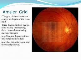 Types Of Amsler Grid Chart Amsler Grid