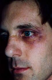 david presto special effects makeup black eye