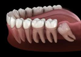 Dental insurances cover from about $50 to $350 per tooth. Wisdom Teeth Removal Extraction In Mountain View And Palo Alto Ca