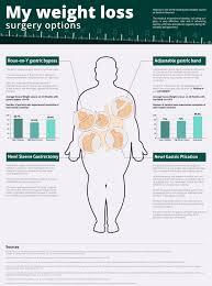 Weight loss Surgery Options | Visual.ly