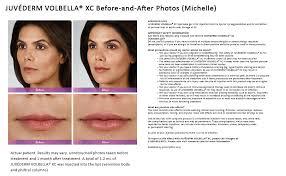 volbella lip injection seattle