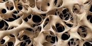 نتیجه تصویری برای مقاله درمورد راه های جلوگیری از پوکی استخوان