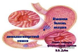 Презентация на тему Язвенная болезнь желудка и  1 Язвенная болезнь желудка