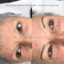 Dermopigmentazione Roma Tatuaggi Roma