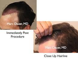 Hair Line Design Transplant Natural Hairline Design In Hair Transplant Procedures Marc