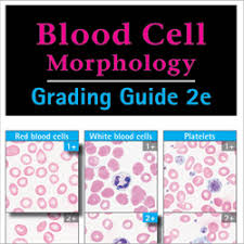 Rbc Morphology Grading Chart Blood Cells Grading Guide 2nd Edition