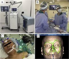 and maxillo surgery