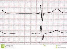 Cardio Chart Bismi Margarethaydon Com