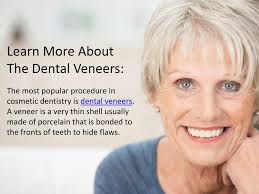 Smile Design Valrico Ppt Learn More About Dental Veneers Powerpoint