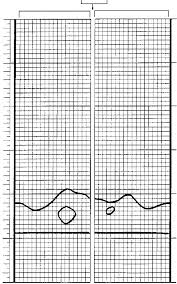 Black Graph Paper Example Of A Drawing Sketched On Graph Paper With The