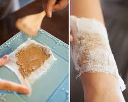 8 Natural Remedies for Itchy and Irritated Skin | Gerson Institute ...