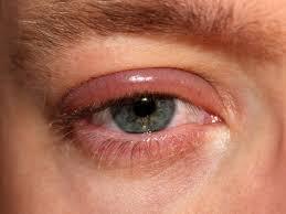 eye disorders understanding the causes