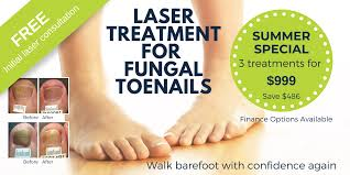 Fungal Nail Infection Treatment Laser | Foot Mechanics New Zealand