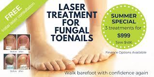 Fungal Nail Infection Treatment Laser | Foot Mechanics New Zealand