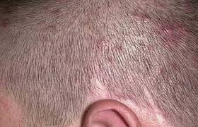 Pictures, Causes and Getting Rid of Scalp Folliculitis | Best Daily ...
