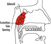 Adenoidectomy Treatment For Children And Teens Childrens