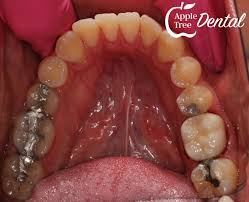 Uv Light Tooth Filling What Is The Blue Light All About Blog