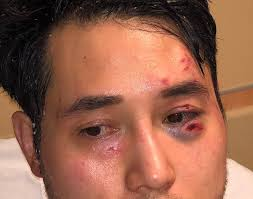 Antifa's Brutal Assault on Andy Ngo Is a Wake-Up Call—for ...