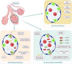 Fostering mesenchymal stem cell therapy to halt cytokine storm in COVID-19  - ScienceDirect