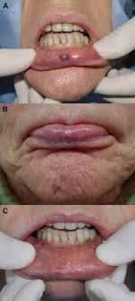 treatment of lip hemangioma using