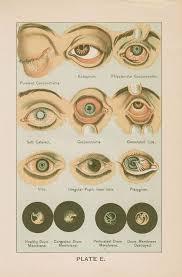 Eye Diseases Chart Antique Eye Diseases Health Illustration Chart 1897