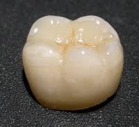 Искусственные зубы Виды и особенности Металлические искусственные зубы