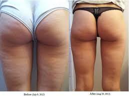 Risultato dell'immagine per la cellulite