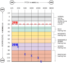 Cochlear Implant Comparison Chart 2016 Bilateral I Look So I Can Hear