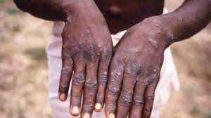 NCDC confirms 15 cases of monkeypox in ...