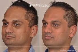 Overbite Correction Overbite Correction Surgery Plastic