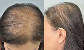Female Pattern Hair Loss Cool Parietal Scalp Is Another Affected Area In Female Pattern Hair Loss