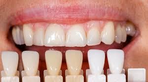 Denture Teeth Color Chart Bedowntowndaytona Com