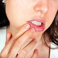 a woman experiencing mouth and lip pain