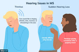 Ms Light Headed Hearing Problems And Multiple Sclerosis
