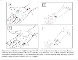 jneuro nerve conduction study