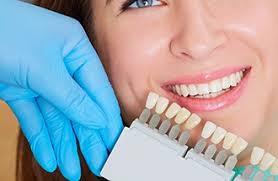 Cosmetic Dentist Loomis Porcelain Veneers Teeth Whitening