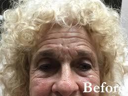 before after belinda pate