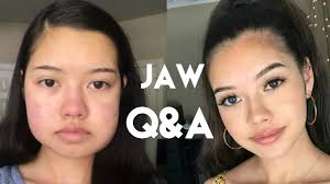 jaw surgery q a how much did it cost do i regret it pain level