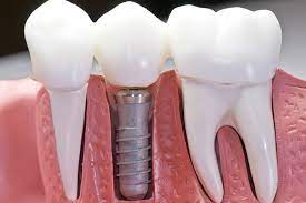 do dental implants cost in mesa