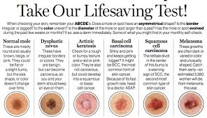 Mole Chart For Skin Cancer How To Be Smarter About Skin Cancer Glamour