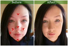before and after green concealer colour correction redness blemises