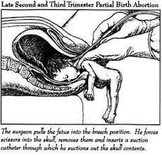 Partial Birth Abortion Plan Leroy Carhart D C Partial Birth Abortion Clinic